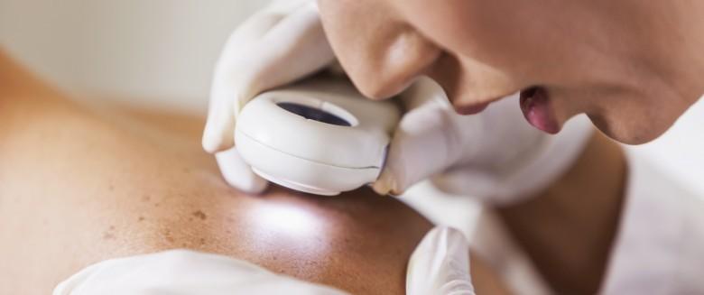 3 fausses croyances sur le cancer de la peau