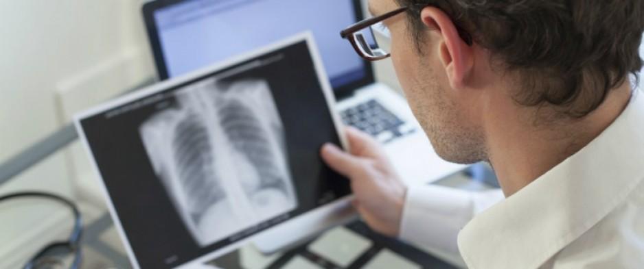 A quelle point une pneumonie peut-elle être grave?