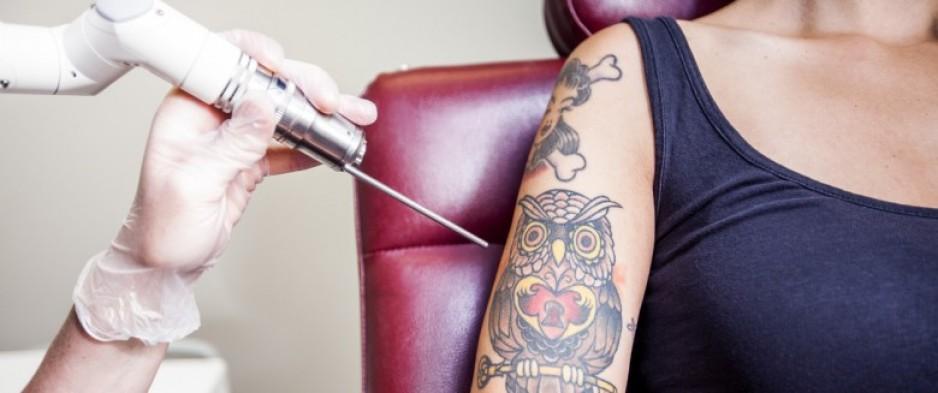 enlever tatouage laser bouches du rhone tatouage. Black Bedroom Furniture Sets. Home Design Ideas