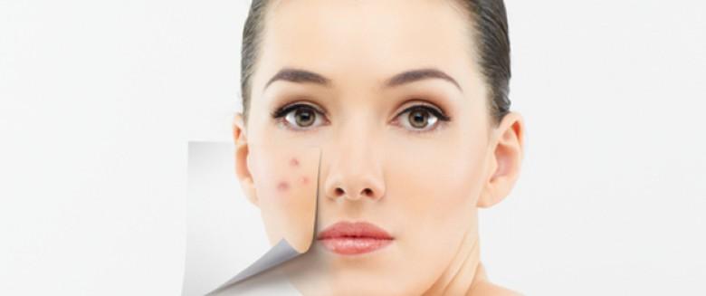 comment soigner visage rouge