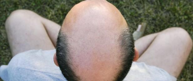 Chute de cheveux : le médicament Propecia favoriserait la dépression