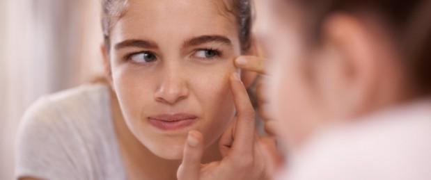Contraception : quelle est l'influence de la pilule sur l'acné ?