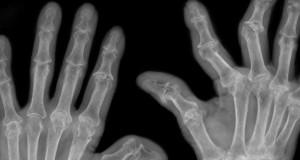 Polyarthrite rhumatoïde : et si c'était des bactéries ?