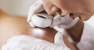 Cancer de la peau : un dépistage gratuit dans toute la France