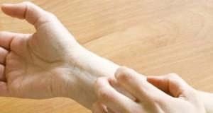 Canicule : comment soigner une poussée d'eczéma