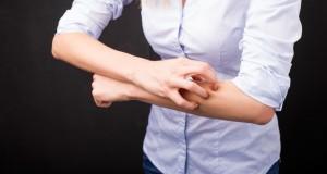 Urticaire chronique : que faire ?