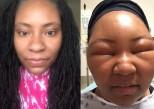 Coloration au henné : la vidéo qui alerte sur l'allergie au PPD