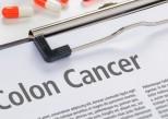 Cancer colorectal : 3 questions sur la prévention