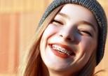 Comment soigner les blessures liées à l'appareil dentaire